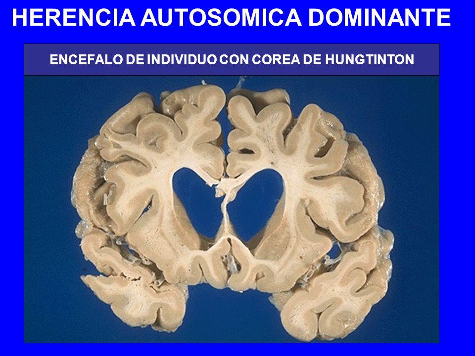 HERENCIA AUTOSOMICA DOMINANTE ENCEFALO DE INDIVIDUO CON COREA DE HUNGTINTON