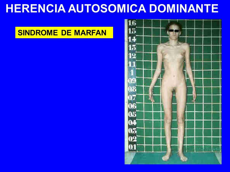 HERENCIA AUTOSOMICA DOMINANTE SINDROME DE MARFAN