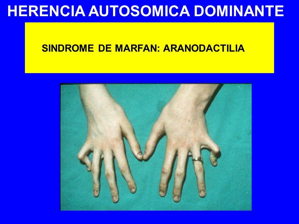 HERENCIA AUTOSOMICA DOMINANTE SINDROME DE MARFAN: ARANODACTILIA