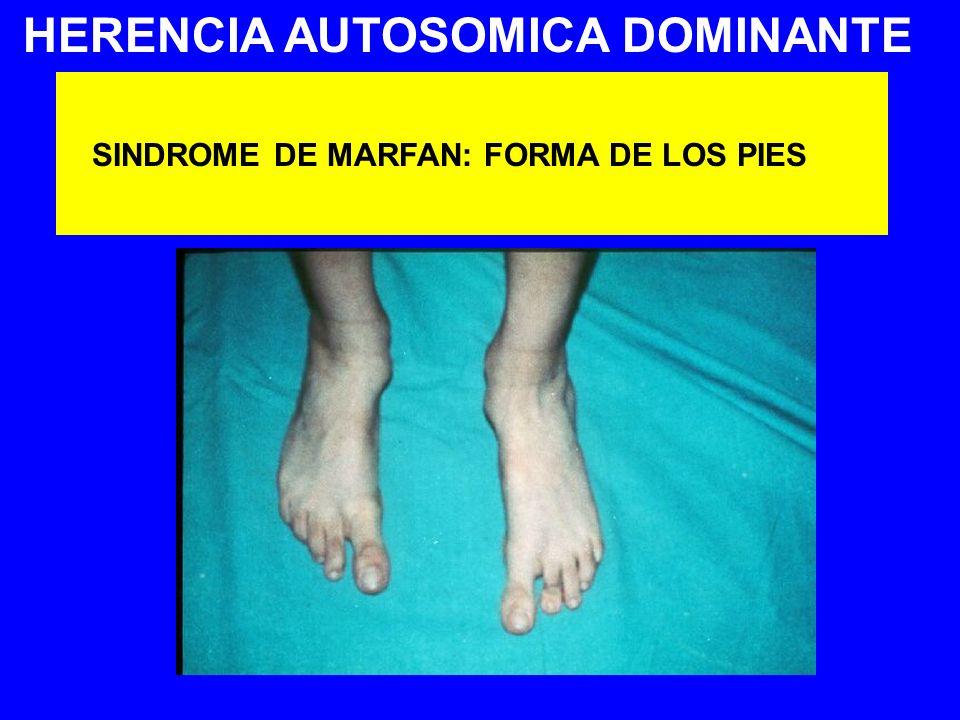 HERENCIA AUTOSOMICA DOMINANTE SINDROME DE MARFAN: FORMA DE LOS PIES