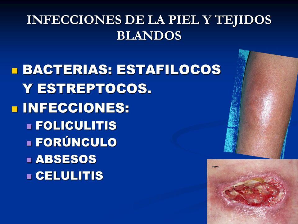 INFECCIONES DE LA PIEL Y TEJIDOS BLANDOS BACTERIAS: ESTAFILOCOS BACTERIAS: ESTAFILOCOS Y ESTREPTOCOS. INFECCIONES: INFECCIONES: FOLICULITIS FOLICULITI