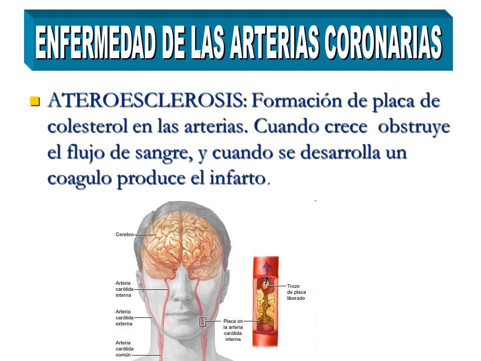 ATEROESCLEROSIS: Formación de placa de colesterol en las arterias. Cuando crece obstruye el flujo de sangre, y cuando se desarrolla un coagulo produce