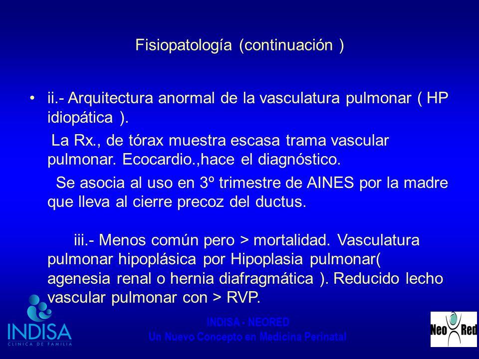 INDISA - NEORED Un Nuevo Concepto en Medicina Perinatal Fisiopatología (continuación ) ii.- Arquitectura anormal de la vasculatura pulmonar ( HP idiop
