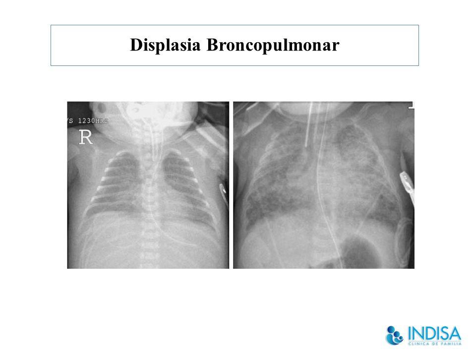 Displasia Broncopulmonar Tratamiento Aporte calórico adecuado: 140 a 180 cal/K, 45% HC, aportar Lípidos en forma de TCM.
