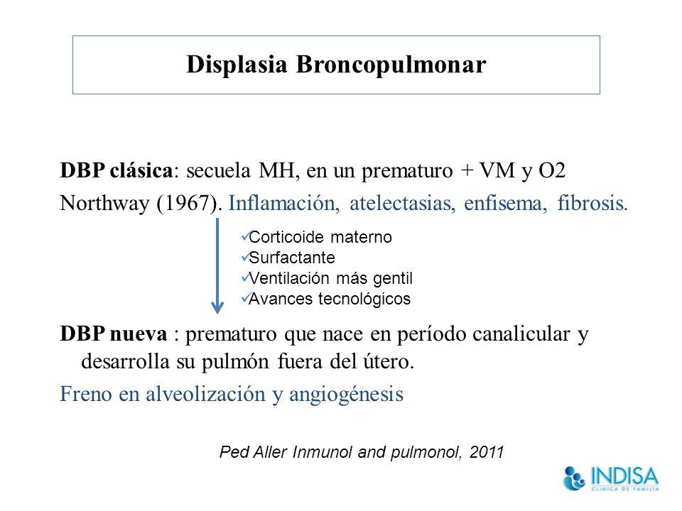 Displasia Broncopulmonar DBP clásica: secuela MH, en un prematuro + VM y O2 Northway (1967).