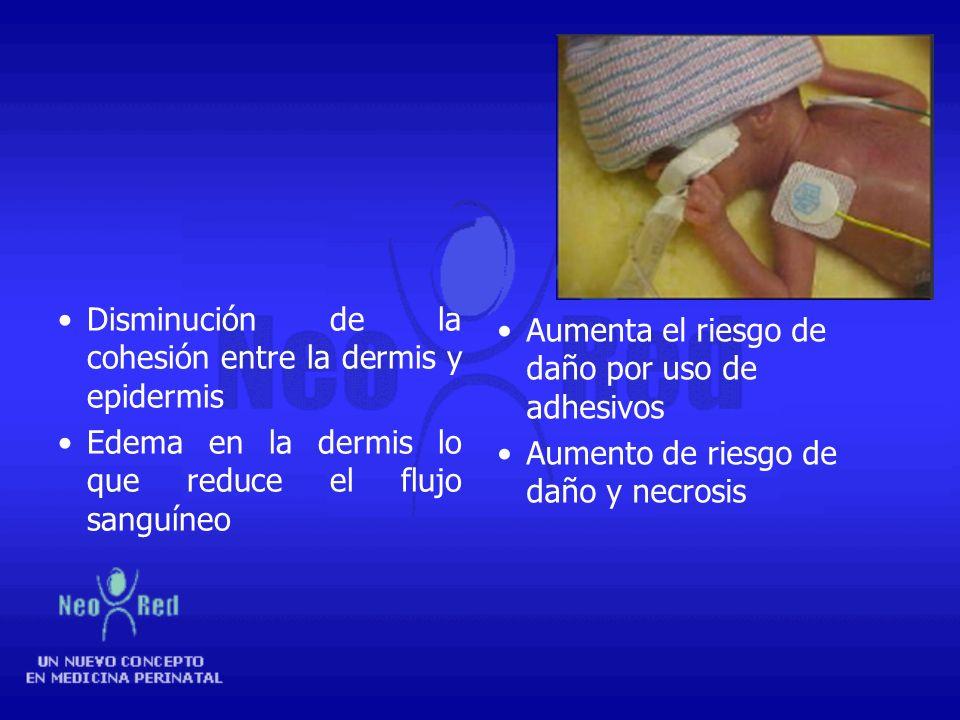 Bebe Prematuro Posee pocas capas de estrato corneo Aumento de la permeabilidad Aumento de la pérdida de calor y agua Aumento de la absorción de sustan