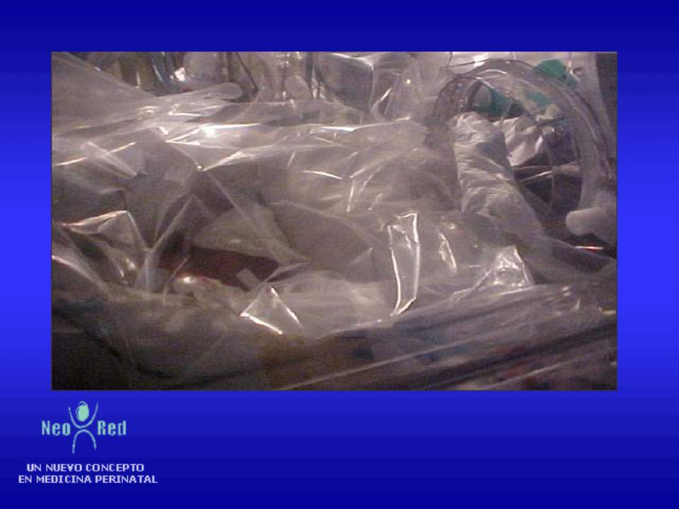 Prevenir pérdida insensible del agua -Uso de cúpula plástica con humedad calefaccionada (70 a 80%) durante los primeros 7 días de vida en RN menores d