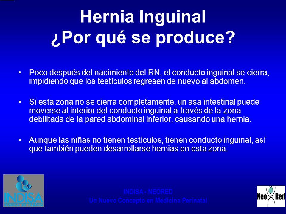 INDISA - NEORED Un Nuevo Concepto en Medicina Perinatal Hernia Inguinal ¿Por qué se produce? Poco después del nacimiento del RN, el conducto inguinal