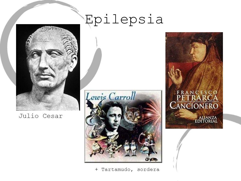 Epilepsia + Tartamudo, sordera Julio Cesar