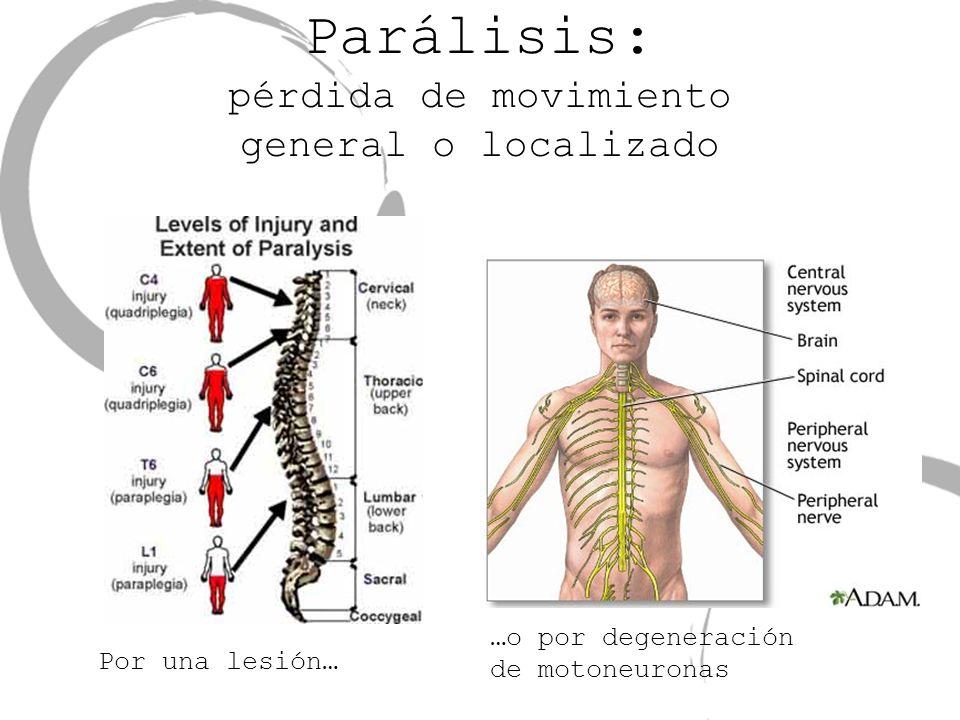 Parálisis: pérdida de movimiento general o localizado …o por degeneración de motoneuronas Por una lesión…