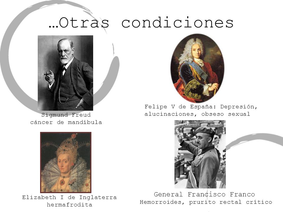 …Otras condiciones Hemorroides, prurito rectal crítico Sigmund Freud cáncer de mandíbula Elizabeth I de Inglaterra hermafrodita Felipe V de España: De