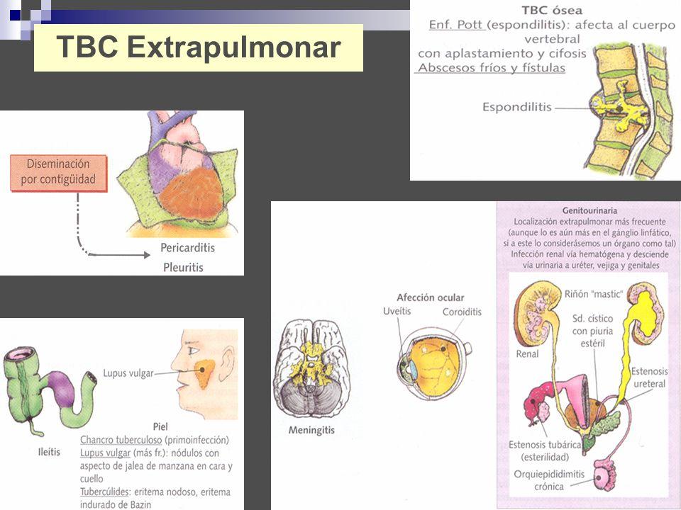 TBC Extrapulmonar