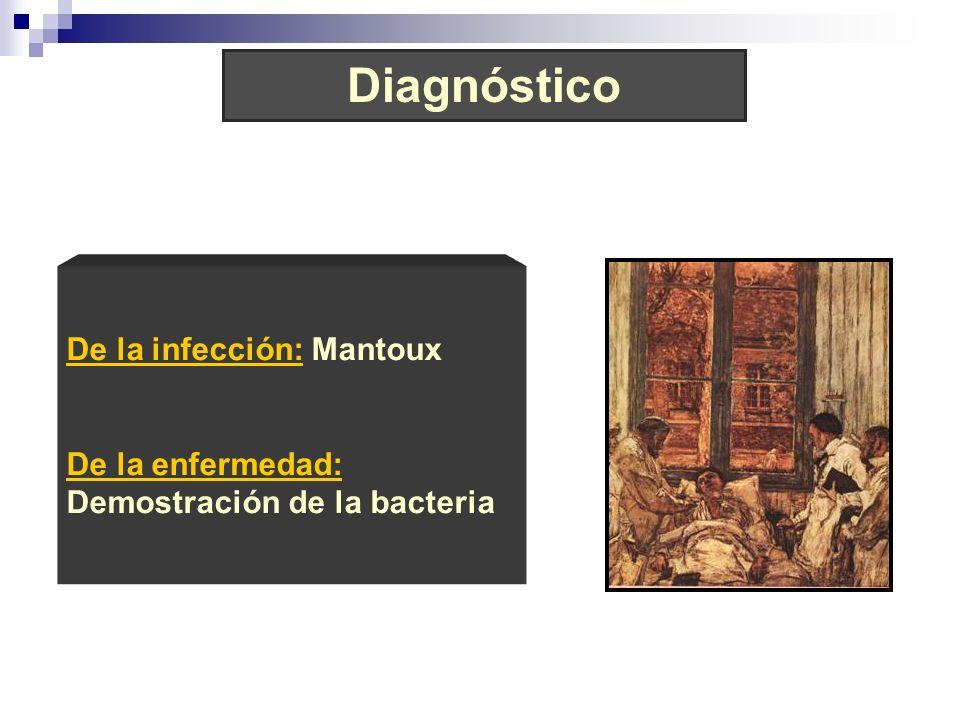 Diagnóstico De la infección: Mantoux De la enfermedad: Demostración de la bacteria