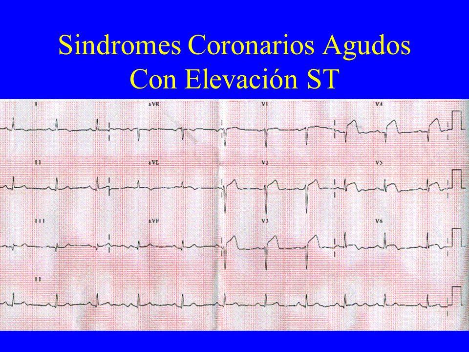 Sindromes Coronarios Agudos Con Elevación ST