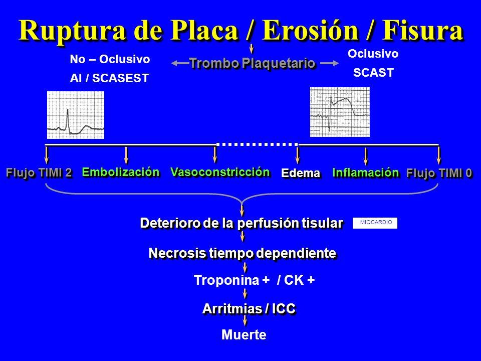 Ruptura de Placa / Erosión / Fisura Trombo Plaquetario EmbolizaciónEmbolización Necrosis tiempo dependiente Flujo TIMI 2 VasoconstricciónVasoconstricc
