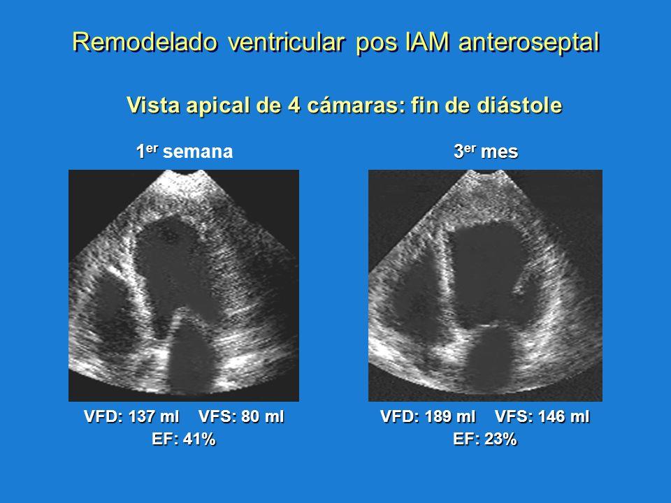 1 er 1 er semana VFD: 137 ml VFS: 80 ml EF: 41% 3 er mes VFD: 189 ml VFS: 146 ml EF: 23% Vista apical de 4 cámaras: fin de diástole Vista apical de 4