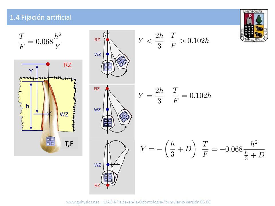1.4 Fijación artificial www.gphysics.net – UACH-Fisica-en-la-Odontologia-Formulario-Versión 05.08 T,F