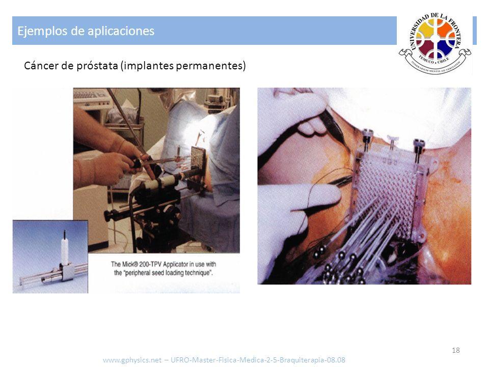 Ejemplos de aplicaciones 19 www.gphysics.net – UFRO-Master-Fisica-Medica-2-5-Braquiterapia-08.08 Colocación de los catéter Prostate Brachytherapy, Gerard Morton, University of Toronto