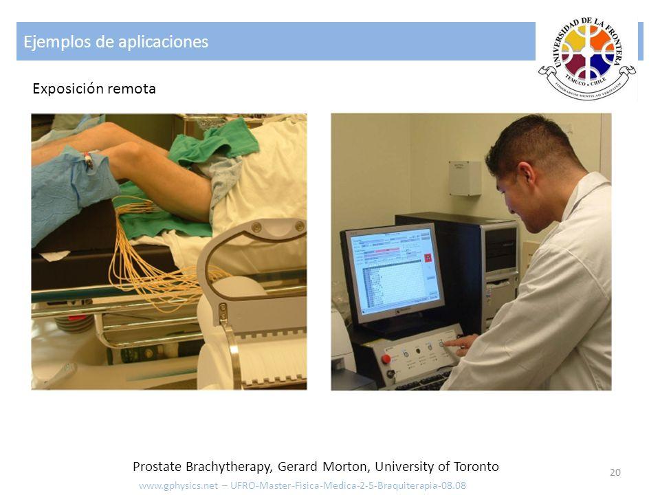 Ejemplos de aplicaciones 21 www.gphysics.net – UFRO-Master-Fisica-Medica-2-5-Braquiterapia-08.08 Cancer vaginal