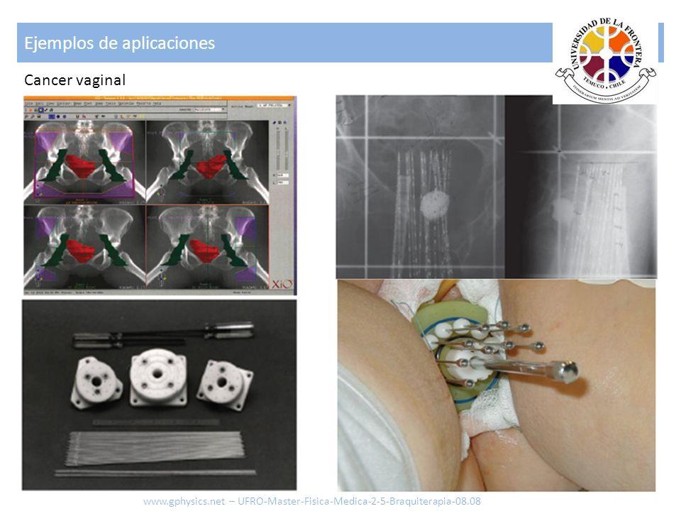 Ejemplos de aplicaciones 22 www.gphysics.net – UFRO-Master-Fisica-Medica-2-5-Braquiterapia-08.08 Cáncer al esófago