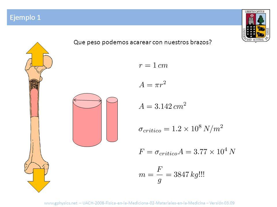 Ejemplo 2 Que elongación sufre el hueso si se levantan 20kg.