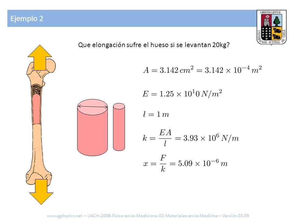 Mecanismo de ruptura www.gphysics.net – UACH-2008-Fisica-en-la-Mediciona-02-Materiales-en-la-Medicina – Versión 03.09