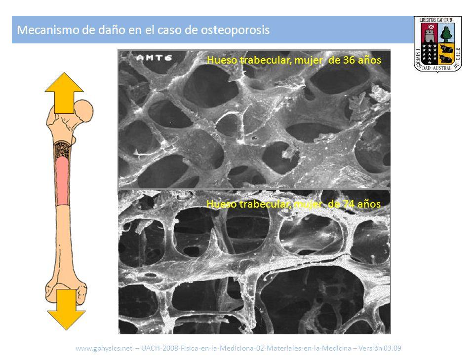 Otros ejemplos de reducción de masa por osteoporosis Modelo que explica el comportamiento: www.gphysics.net – UACH-2008-Fisica-en-la-Mediciona-01-Mecanica-en-la-Medicina – Versión 03.09