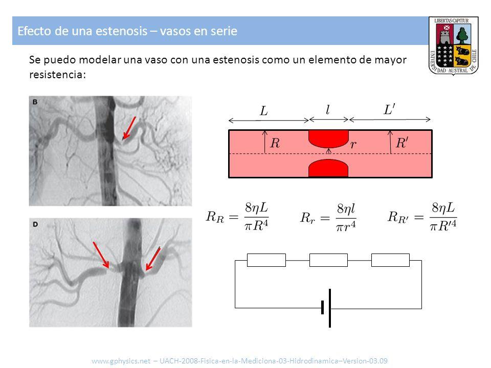 Se puedo modelar una vaso con una estenosis como un elemento de mayor resistencia: Efecto de una estenosis – vasos en serie www.gphysics.net – UACH-20