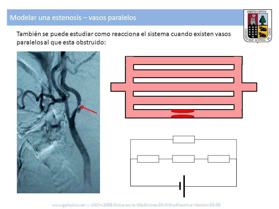 También se puede estudiar como reacciona el sistema cuando existen vasos paralelos al que esta obstruido: Modelar una estenosis – vasos paralelos www.