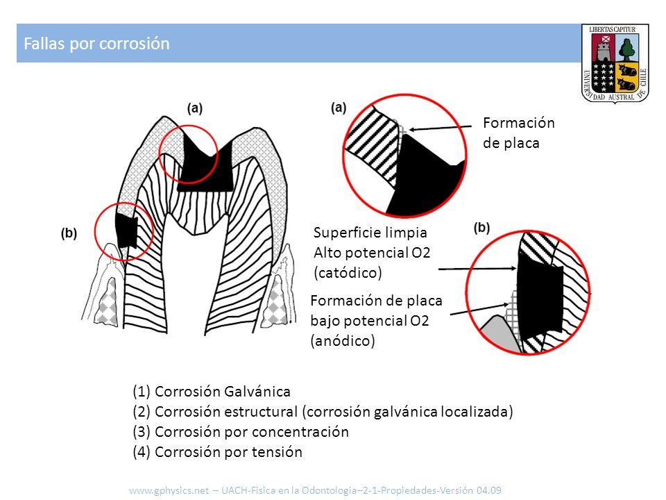 Fallas por corrosión www.gphysics.net – UACH-Fisica en la Odontologia–2-1-Propiedades-Versión 04.09 (1) Corrosión Galvánica (2) Corrosión estructural