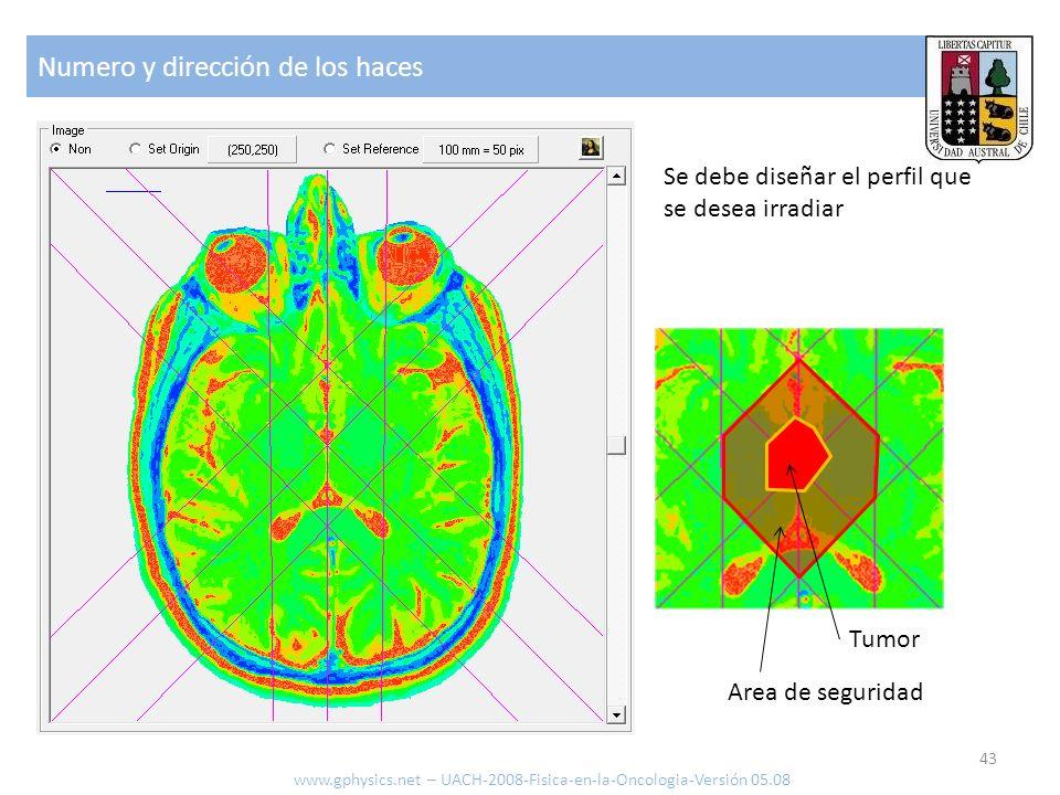 Numero y dirección de los haces 43 www.gphysics.net – UACH-2008-Fisica-en-la-Oncologia-Versión 05.08 Se debe diseñar el perfil que se desea irradiar T
