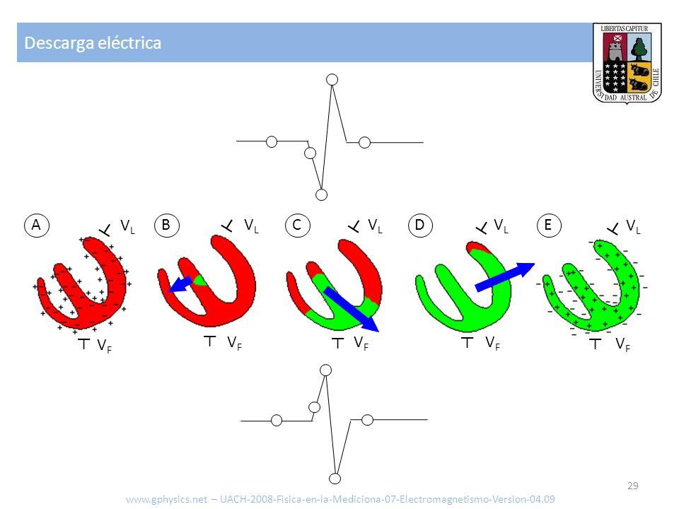 Descarga eléctrica www.gphysics.net – UACH-2008-Fisica-en-la-Mediciona-07-Electromagnetismo-Version-04.09 29 ABCDE VLVL VLVL VLVL VLVL VLVL VFVF VFVF