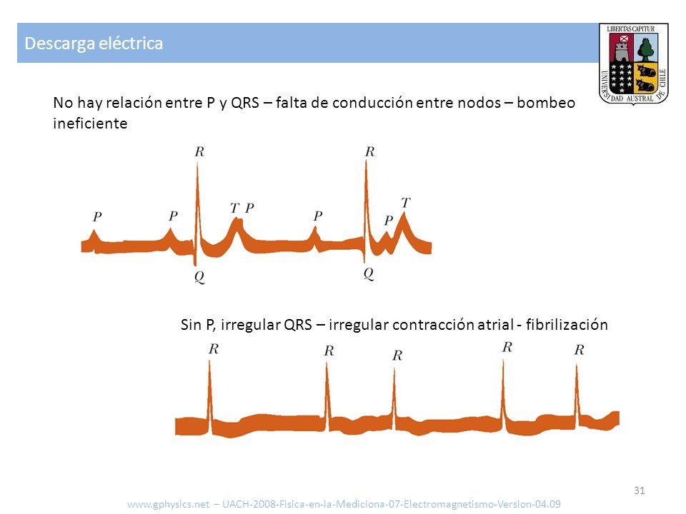 Descarga eléctrica www.gphysics.net – UACH-2008-Fisica-en-la-Mediciona-07-Electromagnetismo-Version-04.09 31 Sin P, irregular QRS – irregular contracc