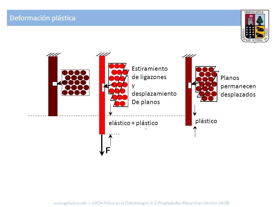 Deformación plástica www.gphysics.net – UACH-Fisica en la Odontologia–2-2-Propiedades-Mecanicas-Version 04.09 Estiramiento de ligazones y desplazamien