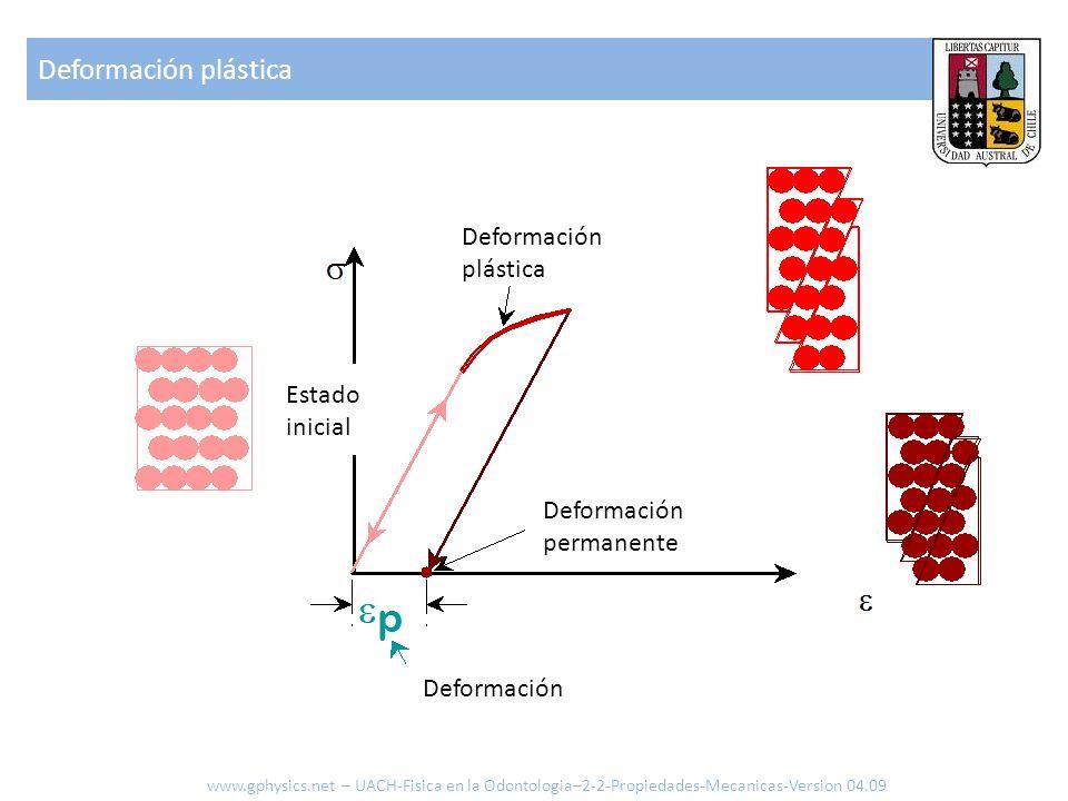 Deformación plástica www.gphysics.net – UACH-Fisica en la Odontologia–2-2-Propiedades-Mecanicas-Version 04.09 Estado inicial Deformación plástica Defo