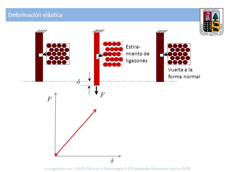 Deformación elástica www.gphysics.net – UACH-Fisica en la Odontologia–2-2-Propiedades-Mecanicas-Version 04.09 Estira- miento de ligazones Vuelta a la