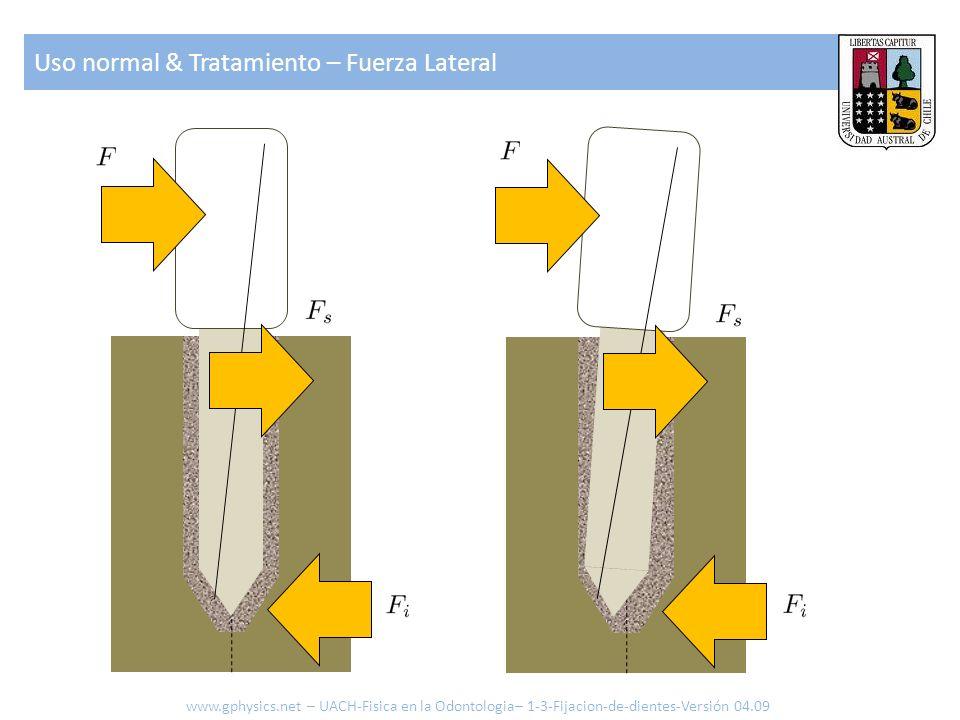 Uso normal & Tratamiento – Fuerza Lateral www.gphysics.net – UACH-Fisica en la Odontologia– 1-3-Fijacion-de-dientes-Versión 04.09