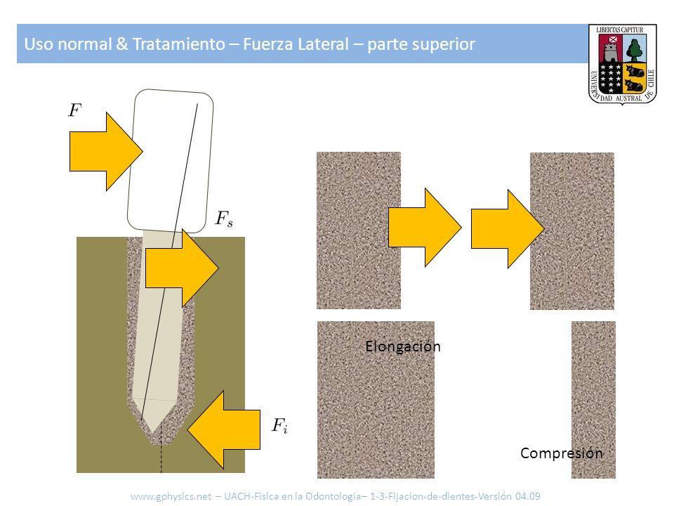 Uso normal & Tratamiento – Fuerza Lateral – parte superior www.gphysics.net – UACH-Fisica en la Odontologia– 1-3-Fijacion-de-dientes-Versión 04.09 Elo