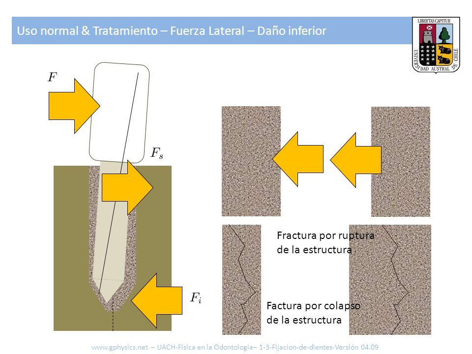 Uso normal & Tratamiento – Fuerza Lateral – Daño inferior www.gphysics.net – UACH-Fisica en la Odontologia– 1-3-Fijacion-de-dientes-Versión 04.09 Frac