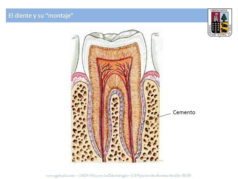 El diente y su montaje www.gphysics.net – UACH-Fisica en la Odontologia– 1-3-Fijacion-de-dientes-Versión 04.09 Cemento