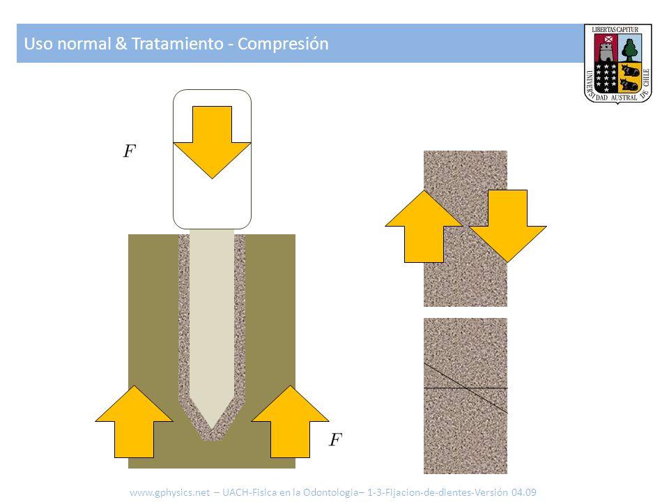 Uso normal & Tratamiento - Compresión www.gphysics.net – UACH-Fisica en la Odontologia– 1-3-Fijacion-de-dientes-Versión 04.09