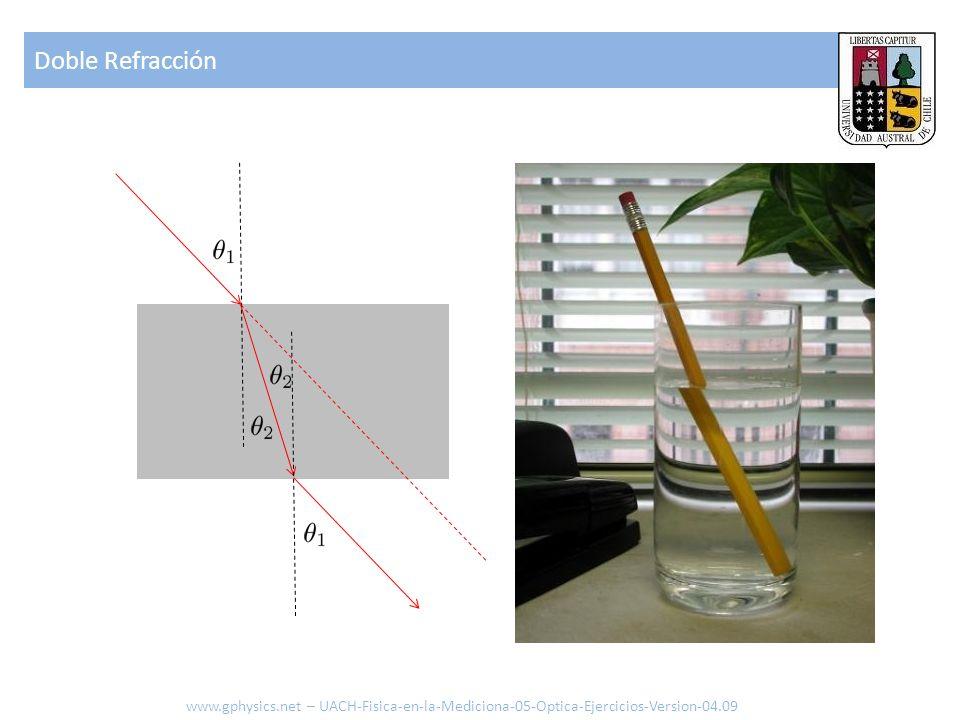 Corrección por errores de enfoque Hipermetropía Miopía convexo cóncavo convexo Dioptría (fuente) (observador) www.gphysics.net – UACH-Fisica-en-la-Mediciona-05-Optica-Ejercicios-Version-04.09 Fuente Observador