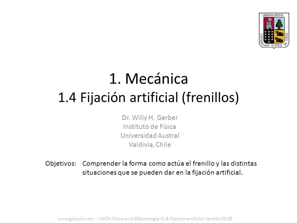 1. Mecánica 1.4 Fijación artificial (frenillos) Comprender la forma como actúa el frenillo y las distintas situaciones que se pueden dar en la fijació