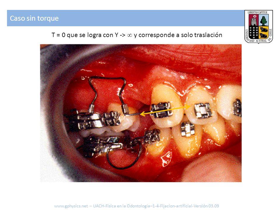 Caso sin torque www.gphysics.net – UACH-Fisica en la Odontologia–1-4-Fijacion-artificial-Versión 03.09 T = 0 que se logra con Y -> y corresponde a sol