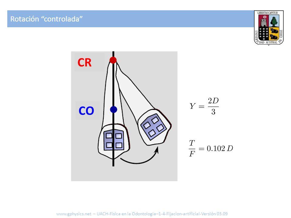 Rotación controlada www.gphysics.net – UACH-Fisica en la Odontologia–1-4-Fijacion-artificial-Versión 03.09 CR CO