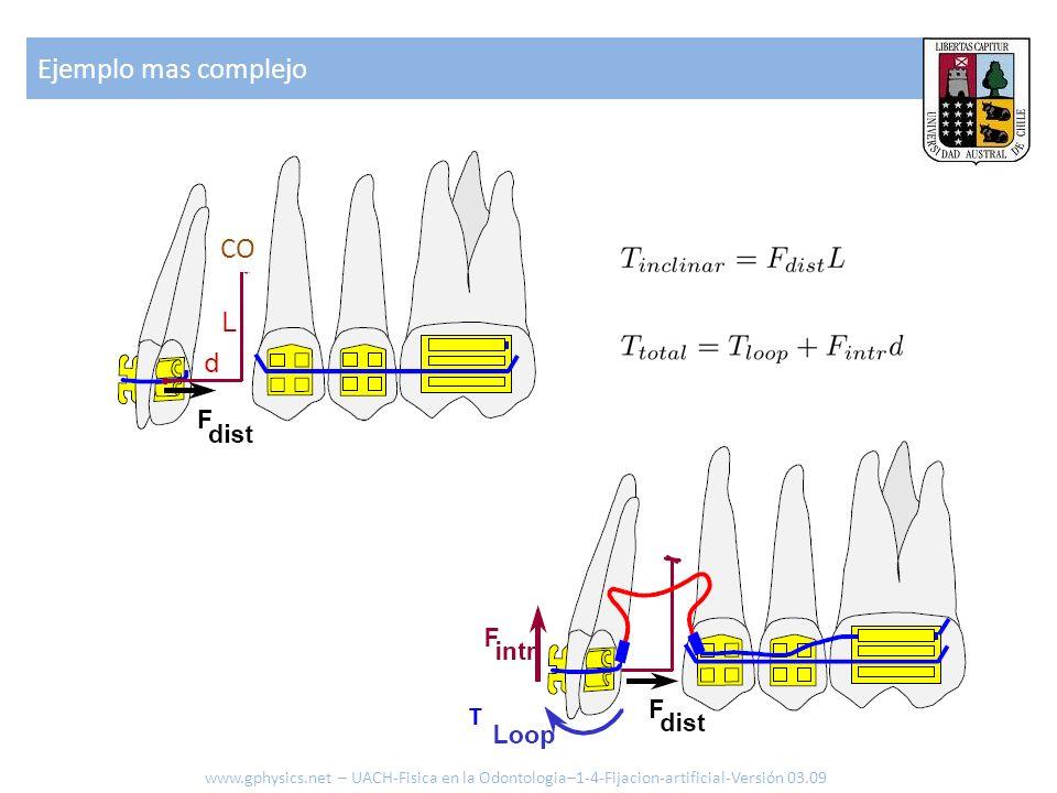 Ejemplo mas complejo www.gphysics.net – UACH-Fisica en la Odontologia–1-4-Fijacion-artificial-Versión 03.09 CO T
