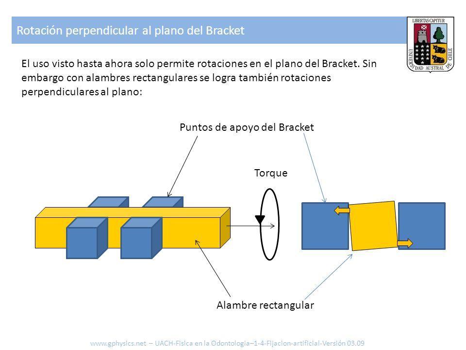 Rotación perpendicular al plano del Bracket www.gphysics.net – UACH-Fisica en la Odontologia–1-4-Fijacion-artificial-Versión 03.09 El uso visto hasta