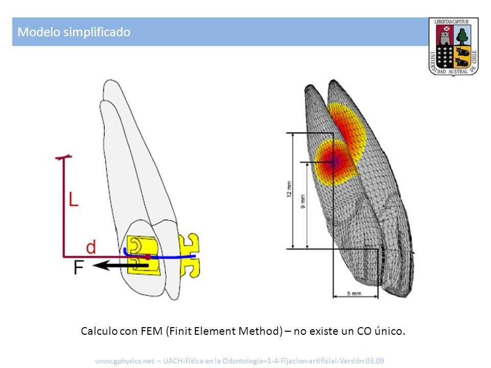 Modelo simplificado www.gphysics.net – UACH-Fisica en la Odontologia–1-4-Fijacion-artificial-Versión 03.09 Calculo con FEM (Finit Element Method) – no