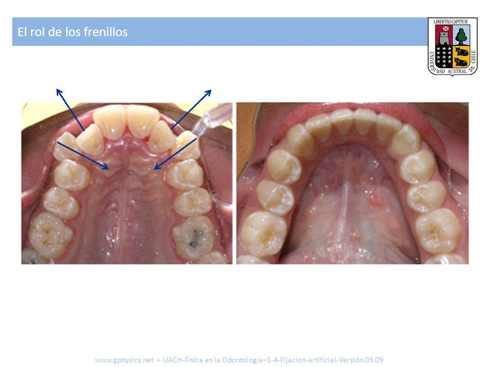 El rol de los frenillos www.gphysics.net – UACH-Fisica en la Odontologia–1-4-Fijacion-artificial-Versión 03.09