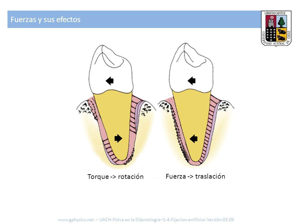 Fuerzas y sus efectos www.gphysics.net – UACH-Fisica en la Odontologia–1-4-Fijacion-artificial-Versión 03.09 Torque -> rotación Fuerza -> traslación